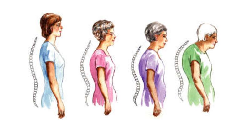 térd hidegvíz kezelés artrózisa