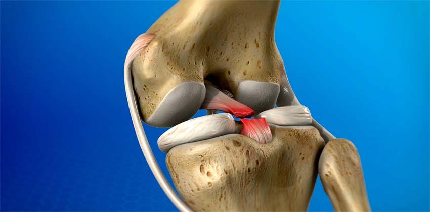 fájdalom a térdízületben a szalagok törése után izületi fájdalom csillapító gyógyszer
