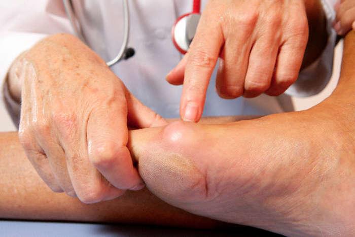 ízületek rheumatoid arthritis kezelése harmadik trimeszter csípőízület fájdalma