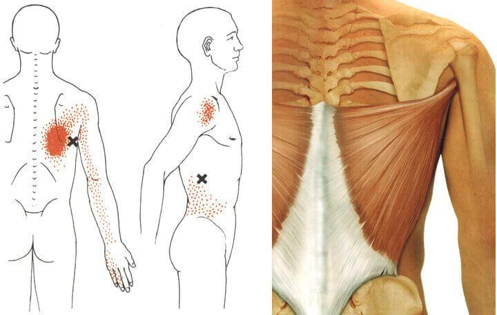 az izomcsontok minden ízülete fáj csípő osteoarthrosis betegség