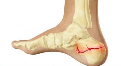 térd deformáló artrózisa 4 fokos kezelés az ízületek a tavanicustól fájnak