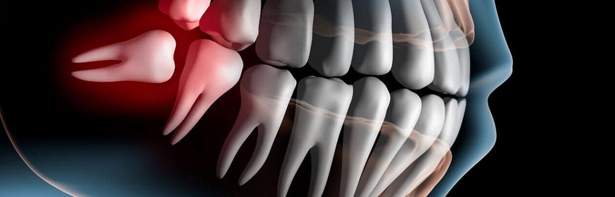 hogyan lehet kezelni az ujjízületet a kezén boka tünetei és kenőcs kezelése