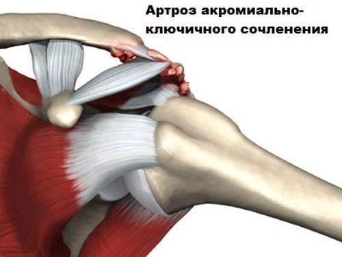csípőízület 1. fokozatának osteoarthrosis kezelése ízületi fájdalomcsillapítók és gélek ellen