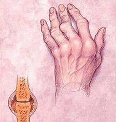 a mutatóujj rheumatoid arthritis lábak ízületi betegsége térd szinovitis