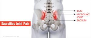 fájdalom a medence ízületeiben ízületi és gerincbetegségek gyógyszerei