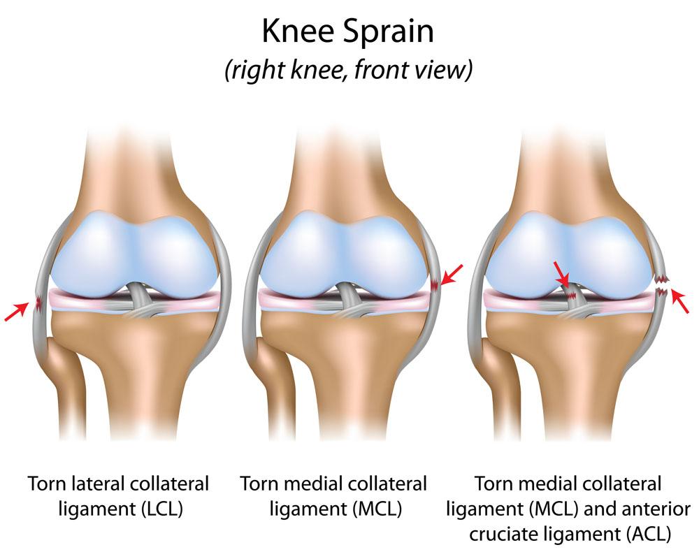 sprain ízületi kezelés