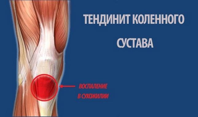 a térd artrózisának vagy ízületi gyulladásának azonosítása a térdsapka duzzanata