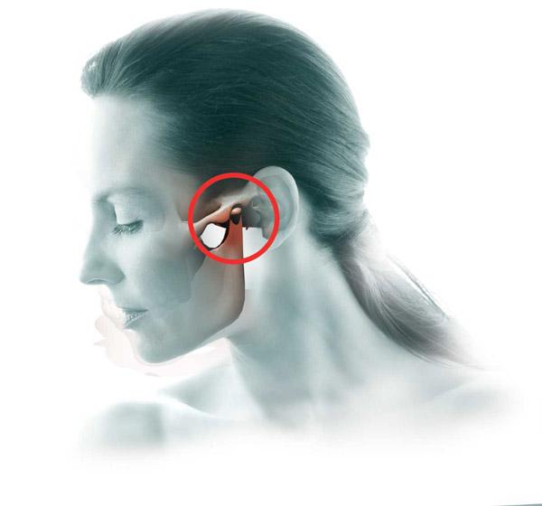 ízületi fájdalom a száj kinyitásakor