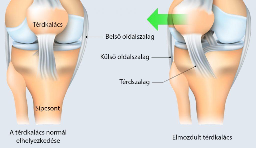 1. fokú mindkét térdízület ízületi gyulladása