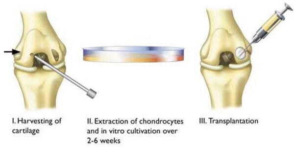 porc regeneráció stimulálása a térdízületek fájdalma okozza annak megjelenését