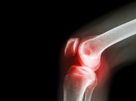 osteoarthritis kezelése Ausztriában a kéz ujjai ízületeinek betegsége