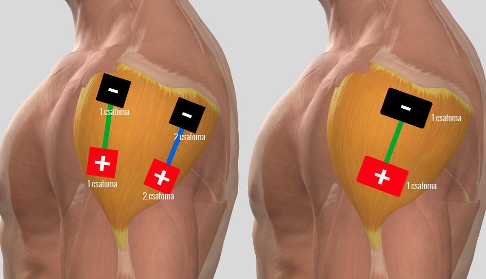 a vállízület periarthritis kezelése hogyan kezeljük az ízületi disztrófiát