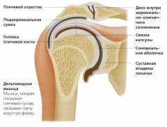 a jobb vállízület artrózisa 2 fok