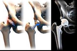 artrózis és coxarthrosis kezelése gyógyszerek m izületi fájdalomra