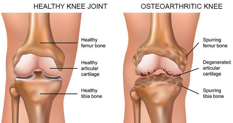 fájdalom térd alatt térdpótlás után boka ligamentum-torzítás kezelése