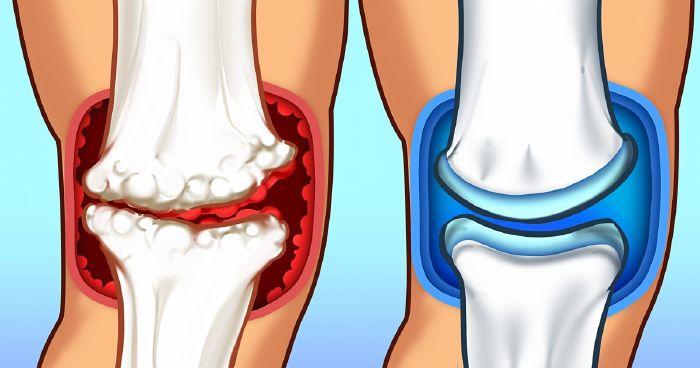 fájdalom ízületek zsineg a 2. fokú térdízületi gyulladás kezelése zselatinnal