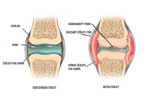 fájdalom a clavicularis ízületi szegycsontjában