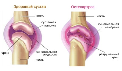 Hogyan kezelhető az artrózis?