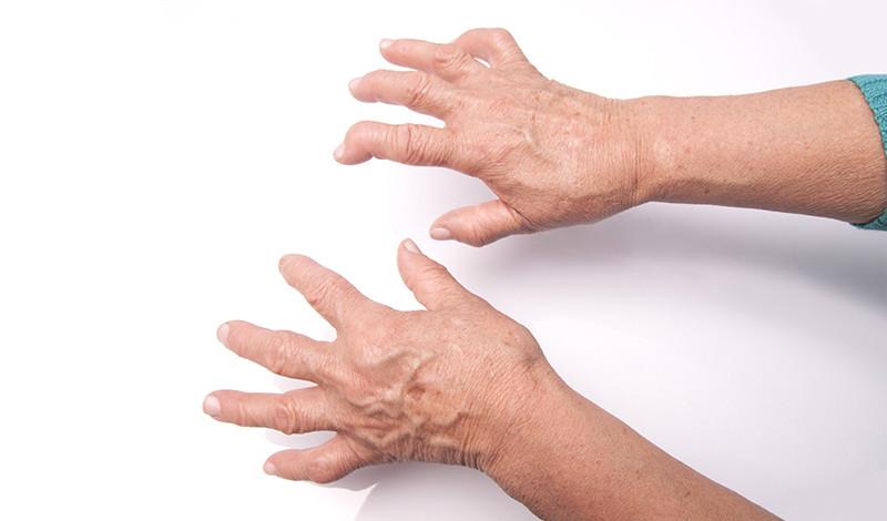 orvostudomány artrózis artritisz kezelése