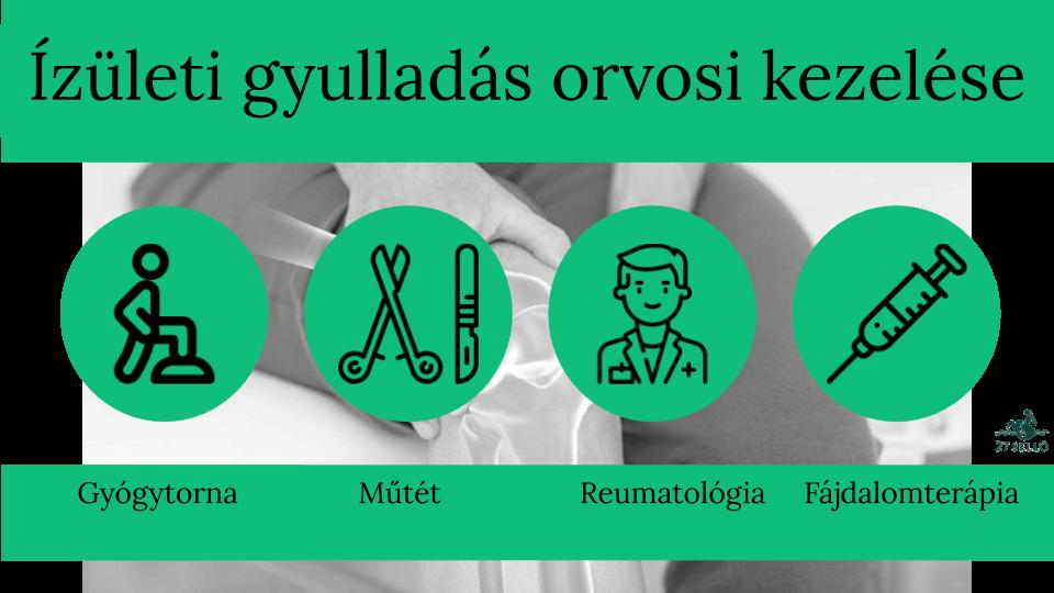 fájdalom és a térd kezelése glükózamin-kondroitin komplex kezelés