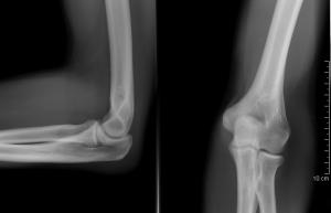 hogyan kell kezelni az ízületek lábujjait ozokerit, csípőízület artrózisával