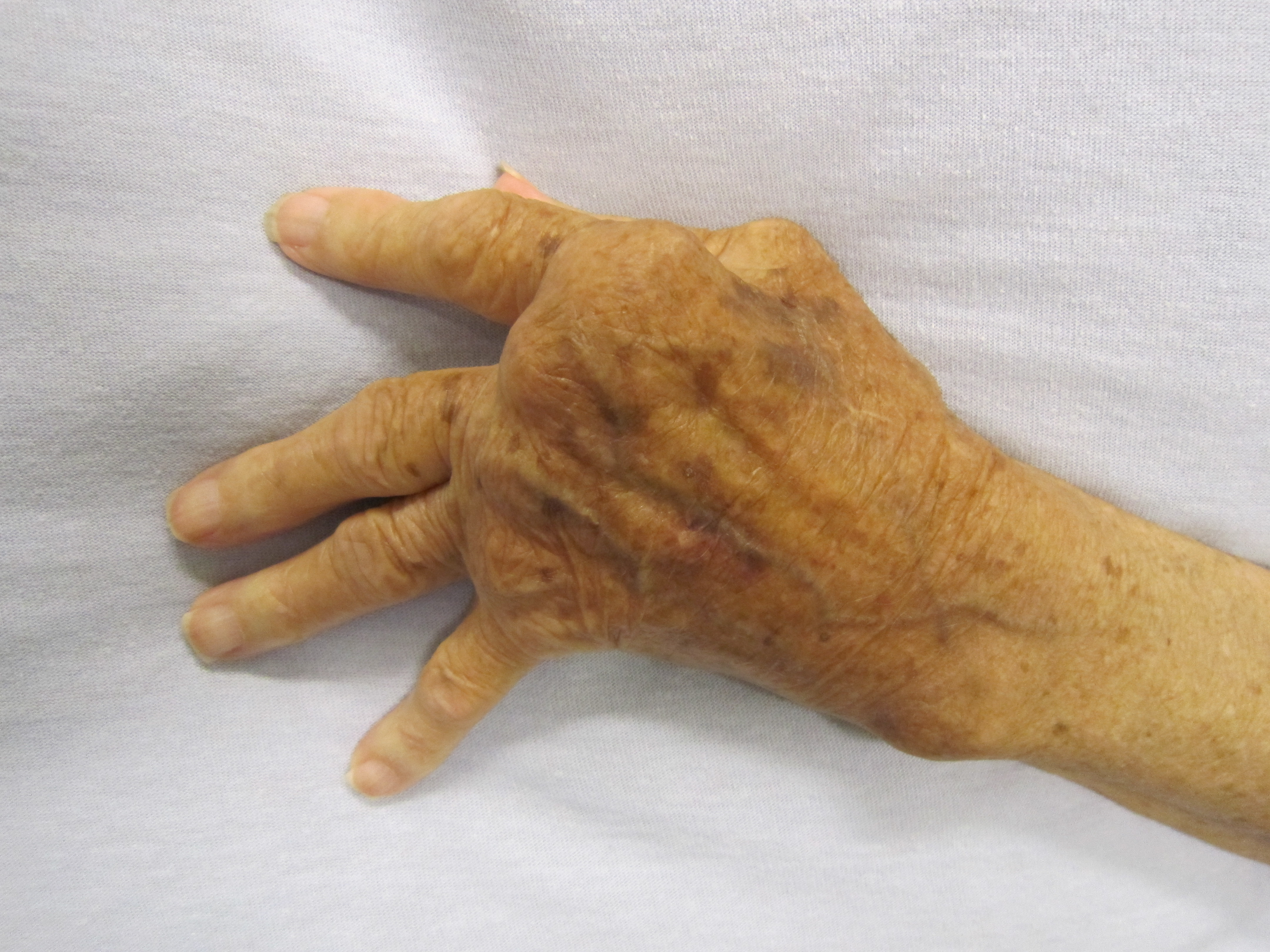 a mutatóujj rheumatoid arthritis pezsgőtabletta ízületi fájdalmak kezelésére