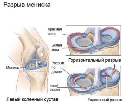 Meniscus térd: okok, tünetek károsodás és kezelés - Csukló July