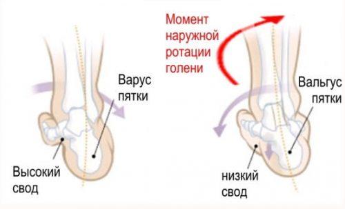 a lábak ízületeinek ízületi betegségei a csípőízület dysplasztikus artrózisa 2 fokkal