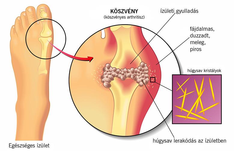 a lábujjak ízületi gyulladást okoznak