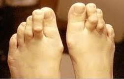 a második lábujj izületi gyulladása a csont- és ízületi fájdalom okainak fóruma
