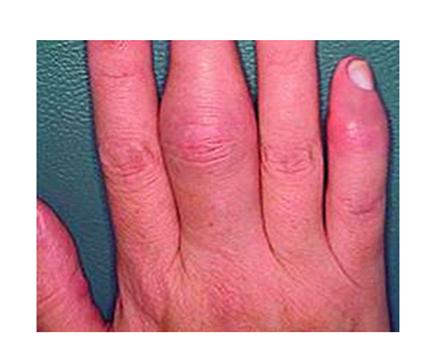a proximalis interfalangealis ízületi gyulladás