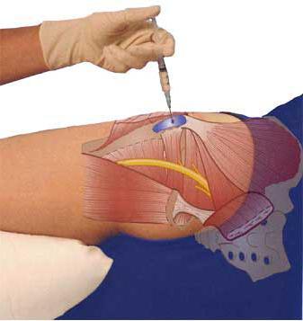medencei ízületi betegség coxarthrosis