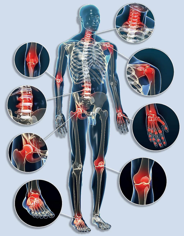 izom- és ízületi fájdalom hőmérsékleten közös gyógyszer a bayer számára