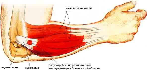 az íves ízületek artrózisának kezdeti megnyilvánulásai ízületi fájdalom a boka