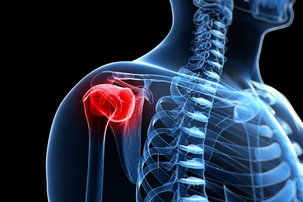 vállízület fájdalommal közös kenőcs törés esetén