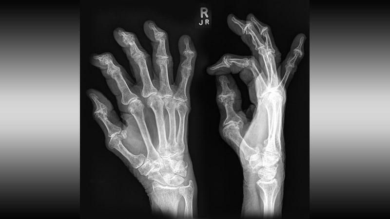 ami a csuklóízület fájdalmának oka hogyan lehet eltávolítani a fájdalmat az ujjak ízületeiben