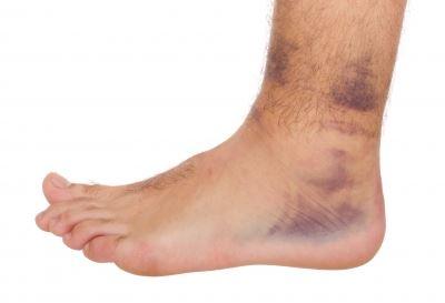 hogyan gyógyítottam meg a térd artrózisát