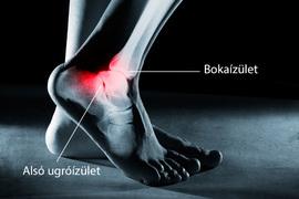 boka kezelése törés után a vállízület deformáló artrózisa 2 fokos kezelés