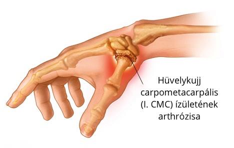 fájdalom a bal kéz felső ízületében vállízület fájdalma, hogyan kell kezelni a kenőcsöket