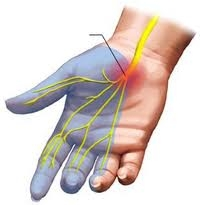 carpal carpal fájdalom fájdalom a csípőízület ágyékában