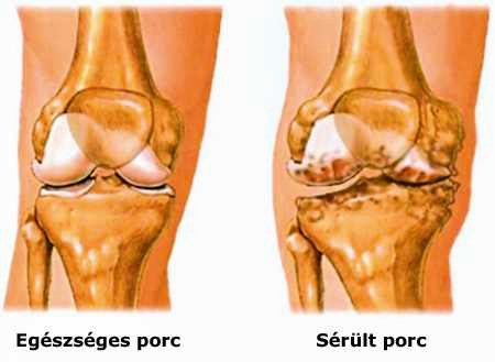 fájó térdízületi fájdalom, hogyan kell kezelni ujjai fájnak