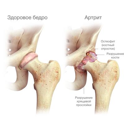 deformáló artrózis 2 3 fokos kezelés