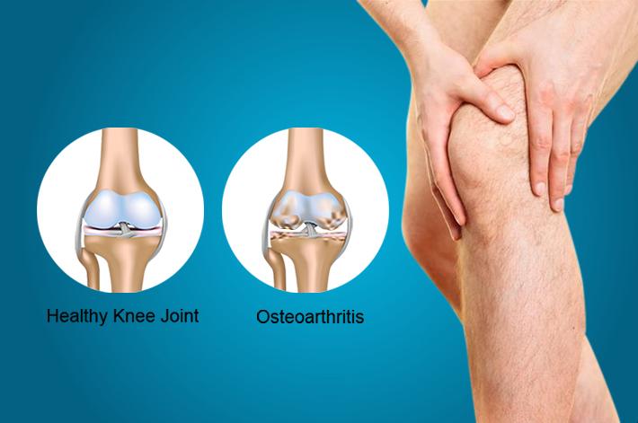 féreg tinktúra ízületi fájdalmak kezelésére posztraumás artrózis hogyan kell kezelni