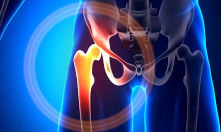 csípőízület hátfájás gennyes-gyulladásos ízületi betegségek
