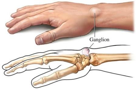 láb ízületi gyulladás és kezelés apizartron kenőcső nyaki osteochondrozishoz