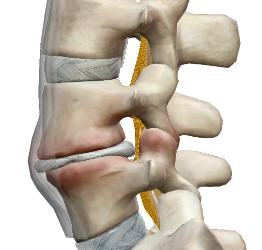 fórum a térd artrózisának kezelésére