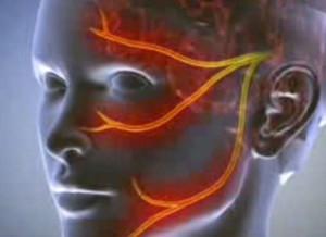 ram-scaphoid arthrosis kezelés