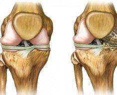 artrózis kezelése urinoterápiával