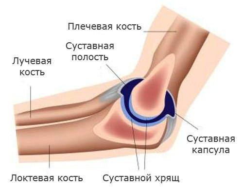 vegyes kötőszövet-betegség-előrejelzés gerinccsont sérülés