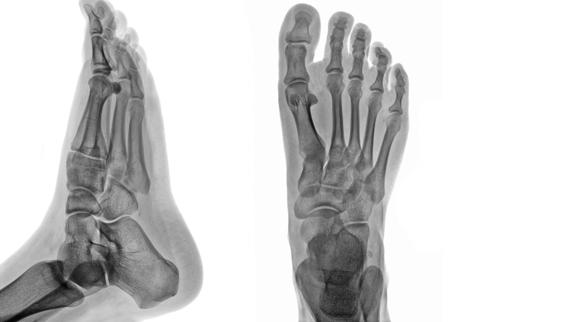 krónikus boka artritisz kezelése
